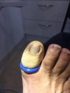 pied aborigène