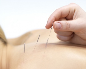 Assas Dry Needling
